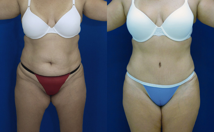 Tummy Tuck and liposuction to flanks and scapular areas (front view)