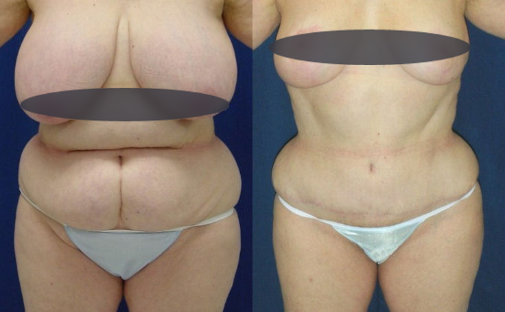 Tummy Tuck and Breast Reduction patient before and after surgery