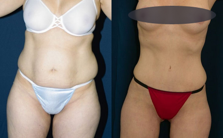 tummy tuck - flat stomach with little scarring