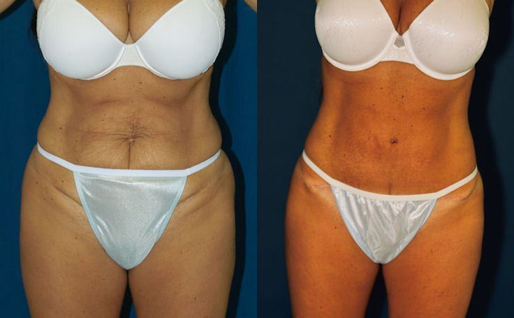 Mini Tummy Tuck (front view)