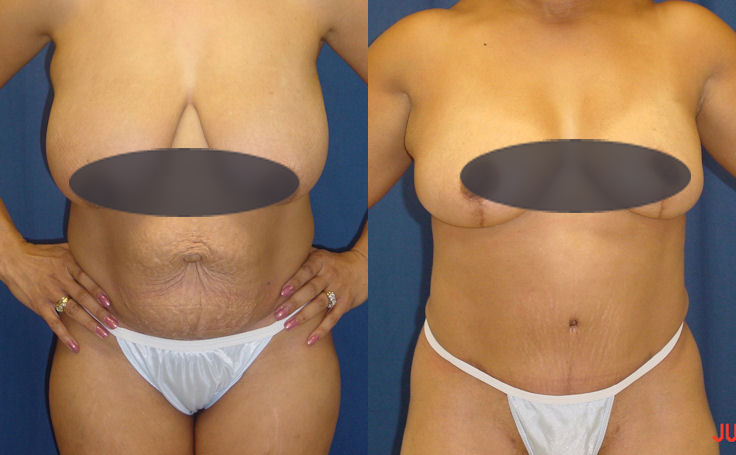 abdominoplasty and breast reduction surgery
