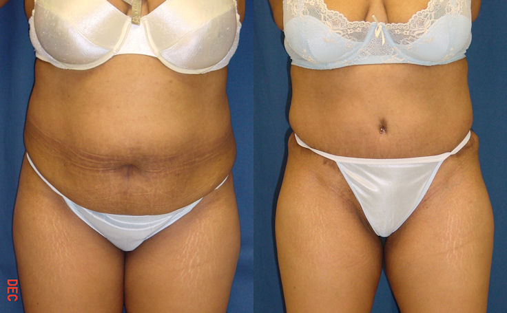 Full Tummy Tuck with Liposuction (front view)