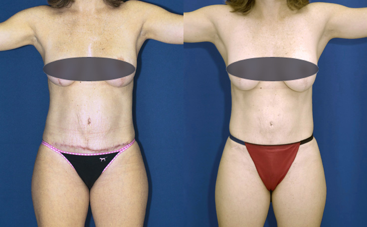 abdominoplasty on a small frame female