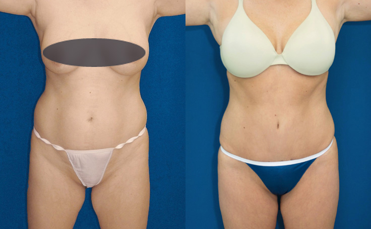 tummy tuck with fat injections to butt