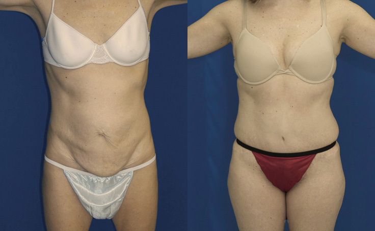 Mini Tummy Tuck with Liposuction flanks (front view)
