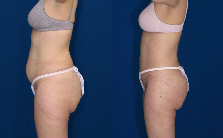 Tummy Tuck with Liposuction thighs and knees (side view)