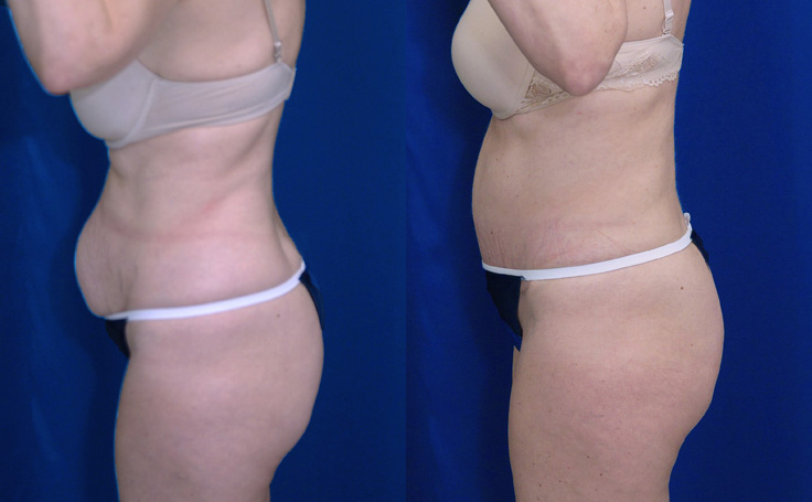 Tummy Tuck with Liposuction to love handles (side view)