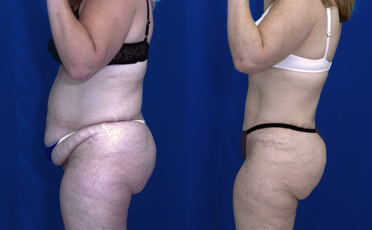 Tummy Tuck with Liposuction flanks and thighs (side view)