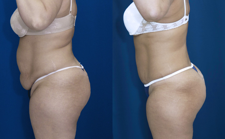 Tummy Tuck and Liposuction love handles and posterior triangle (side view)