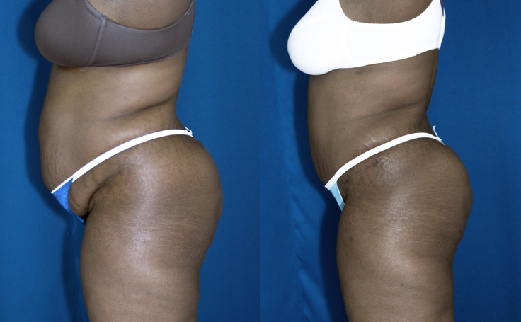 Tummy Tuck with Liposuction to flanks (side view)