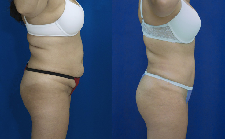 Tummy Tuck and liposuction to flanks and scapular areas (side view)
