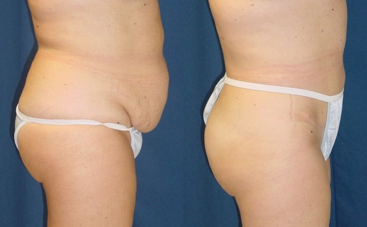 Tummy Tuck Removes Sagging Skin (side view)