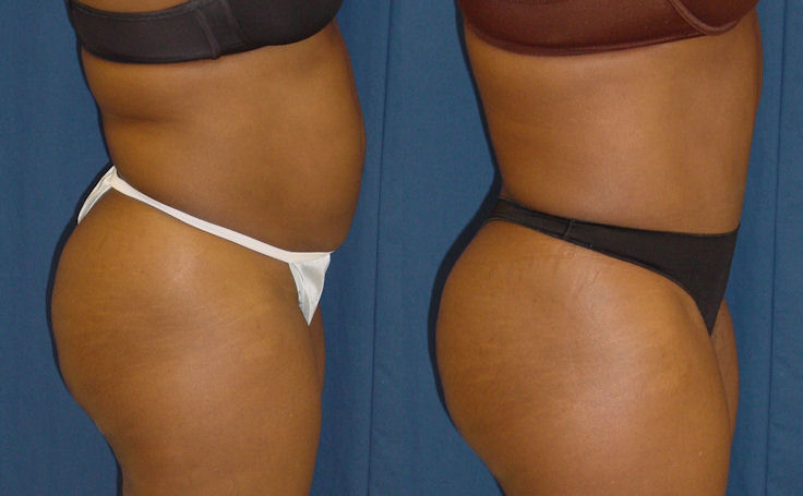 Full Tummy Tuck with Minimal Scarring (side view)
