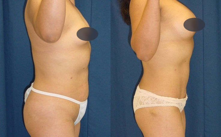 tummy tuck to remove excess skin and fat