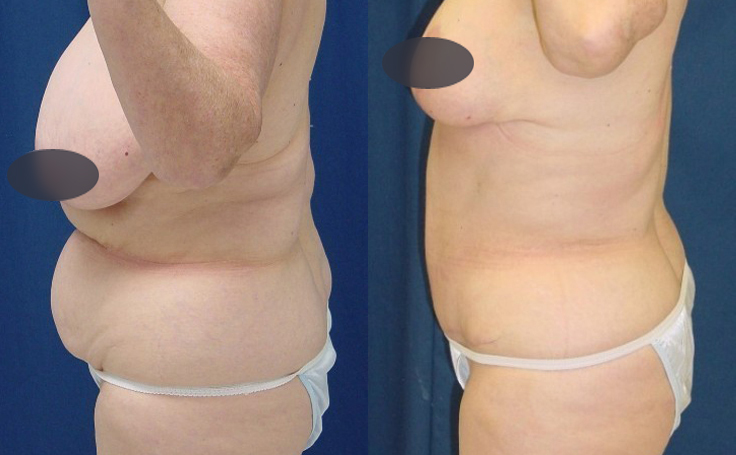 tummy tuck with liposuction and breast reduction