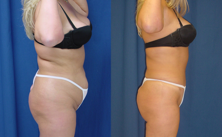 Tummy Tuck with Lipo to Flanks and Thighs (side view)