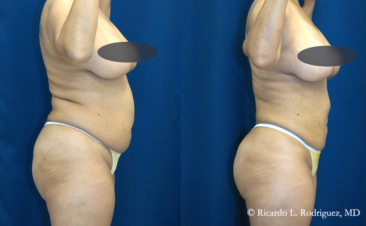 tummy tuck and liposuction (over 4000 cc of fat extracted)