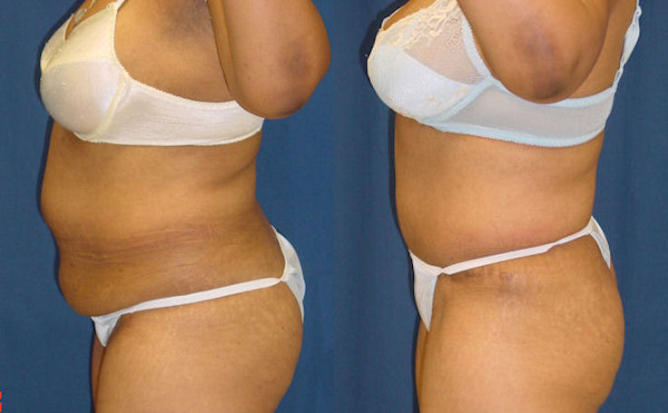 Full Tummy Tuck with Liposuction (side view)
