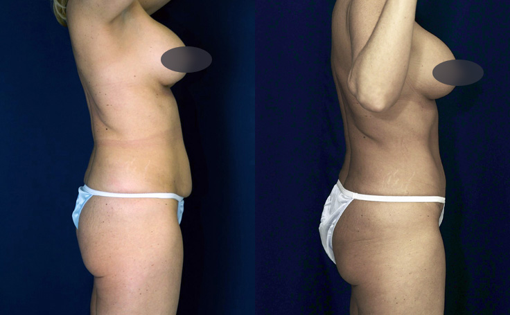 tummy tuck - small amount of loose skin