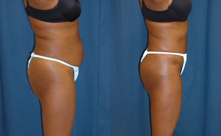 Tummy Tuck and Liposuction flanks (side view)