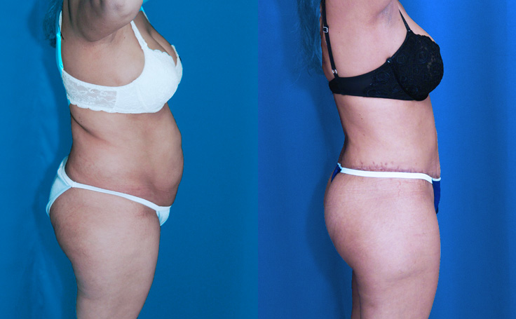 Tummy Tuck with Liposuction and Brazilian Butt Lift (side view)