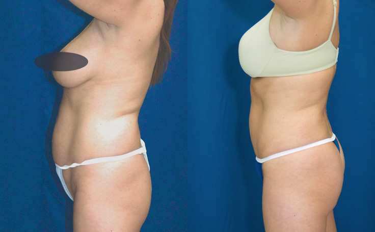 tummy tuck with fat injections to buttocks