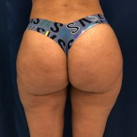 photo of a woman's buttocks 6 weeks after her brazilian butt lift surgery