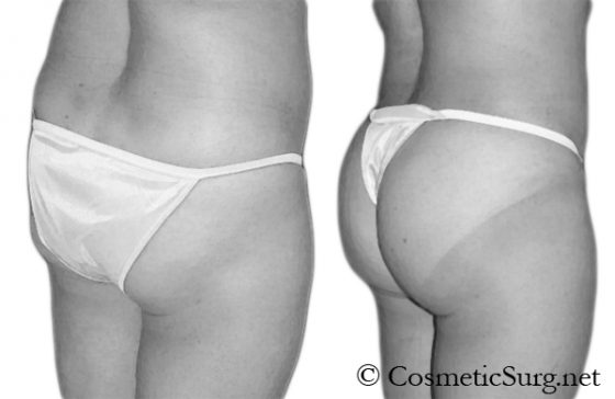 A patient Before & after a Brazilian butt lift with fat injections.