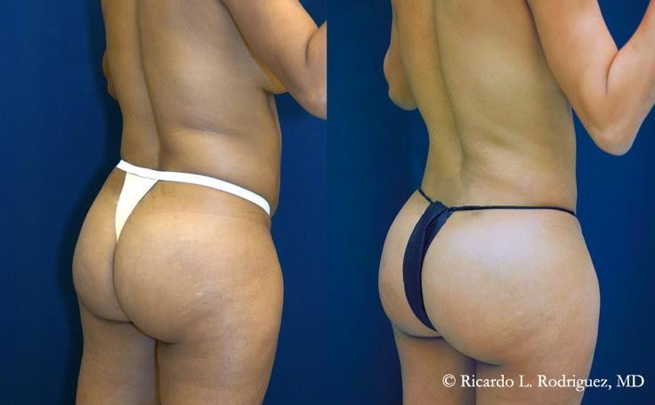 Brazilian Butt Lift Photo