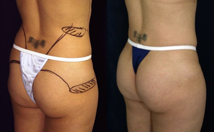 B-more Butt Lift with Dr. Rodriguez in Baltimore