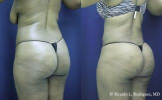 before and after photos of a woman who had a b'more butt lift that removed 4000 cc of fat