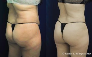 before and after a b'more butt lift patient back side angle view