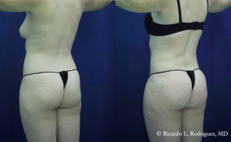 Before and after photo of an actual B-more Butt Lift patient.