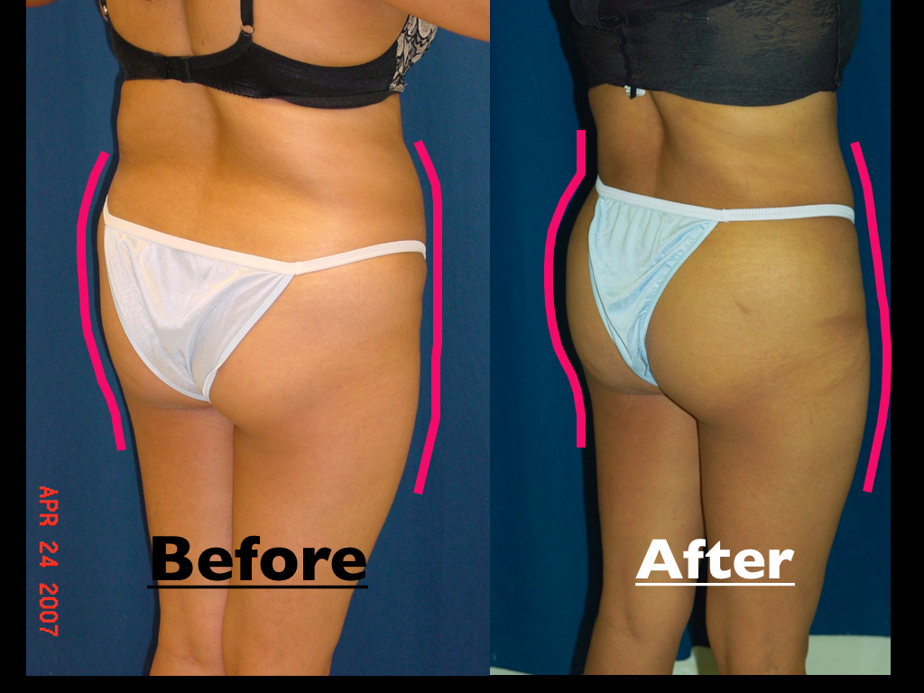 B'more Butt Lift by Dr. Ricardo Rodriguez