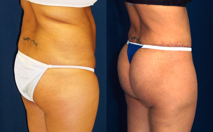 Recovery time breast augmentation and tummy tuck jump