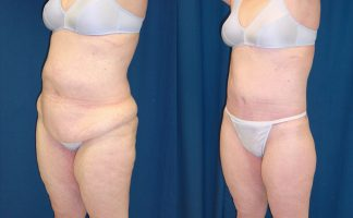 Before and after photo of an actual Body Lift patient.