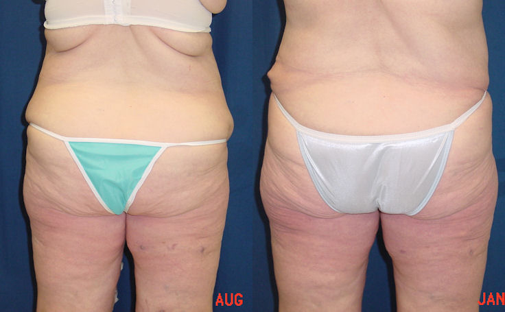 Body Lift After 100-lb Weightloss (back view)