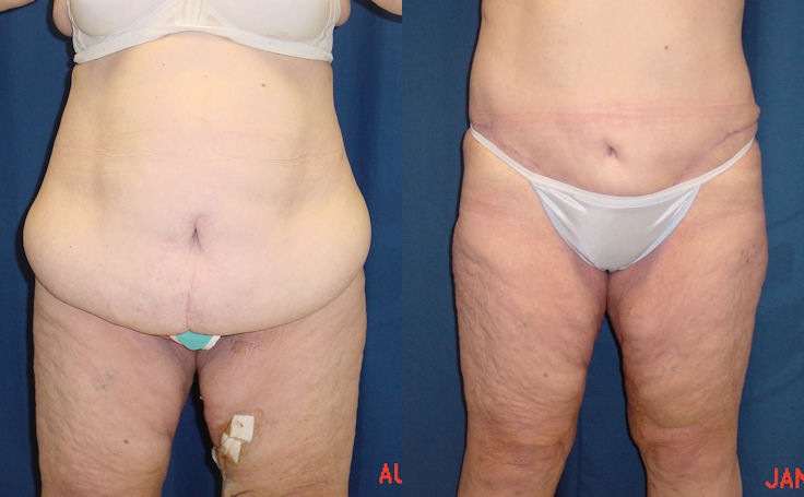 Body Lift After 100-lb Weightloss (front view)