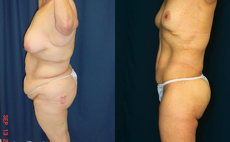 Body Lift Before After s 163.jpg