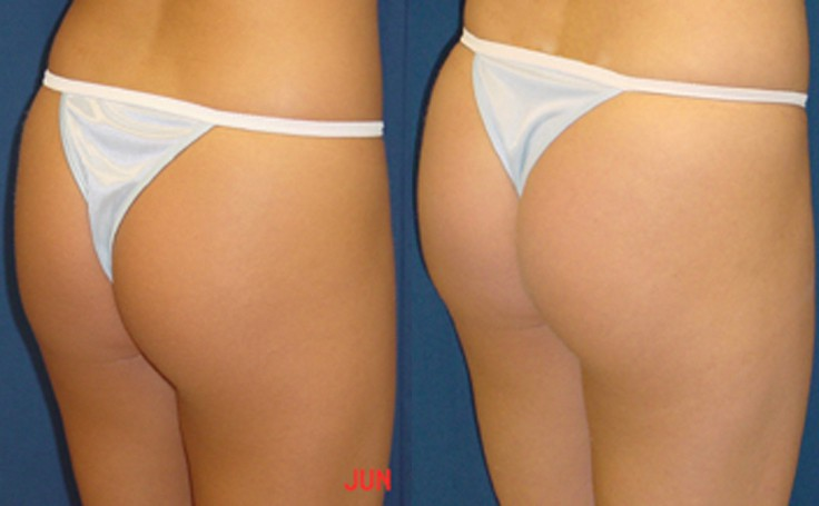 Brazilian Butt Lift with 225 cc fat each cheek