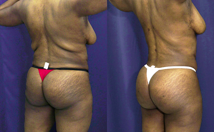 brazilian-butt-lift-before-after-a-15983.jpg