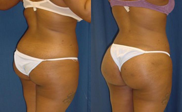 Brazilian Butt Lift with 600 cc fat injections each butt cheek