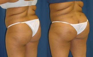 Before and after photo of an actual Brazilian Butt Lift patient.