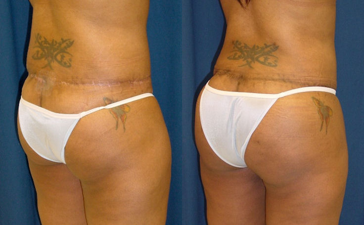 Brazilian Butt Lift after a Body Lift