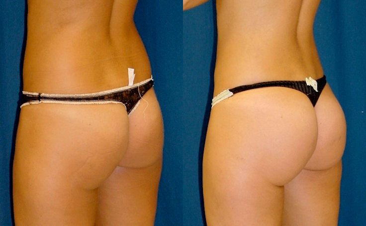 Brazilian Butt Lift with 300 cc each buttock