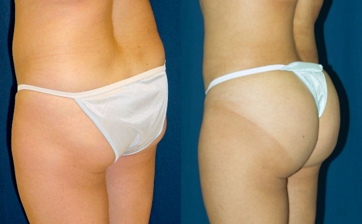 Brazilian Buttocks to help flat buttocks