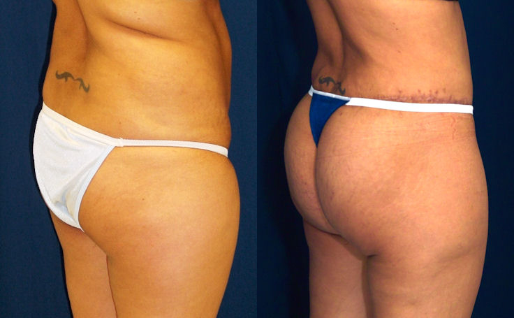 Brazilian Butt Lift with a Body Lift