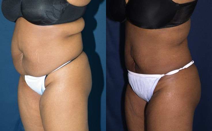 Front View, Brazilian Butt Lift with 500 cc fat each cheek