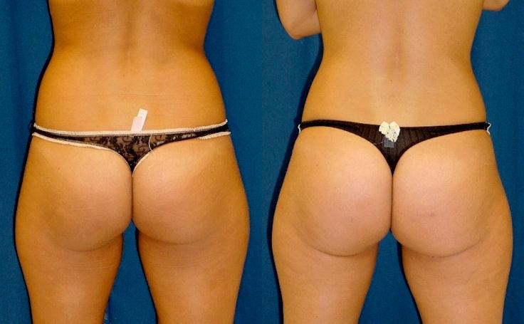 Brazilian Butt Lift with 300 cc fat each cheek