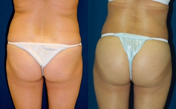 Butt Augmentation with Fat Injections
